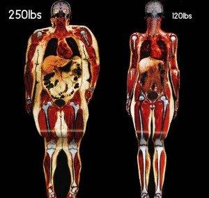 Édes méreg: tények és tippek a cukorfogyasztással kapcsolatban - 1. rész